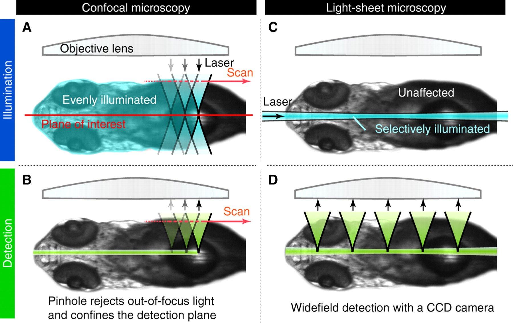Light-sheet-vs-confocal