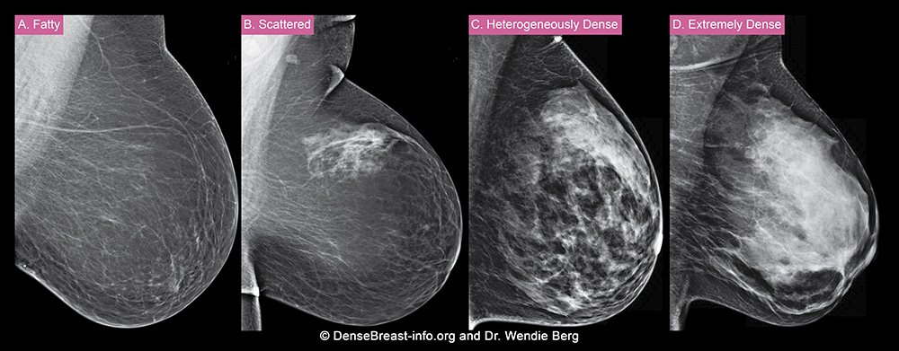 Dense breast tissue categories