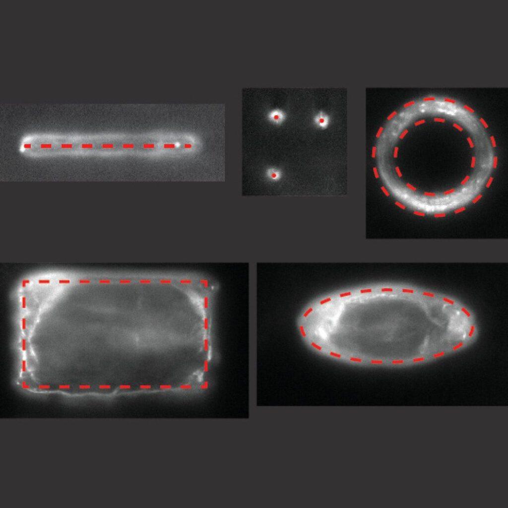 Tissue manipulation pattern