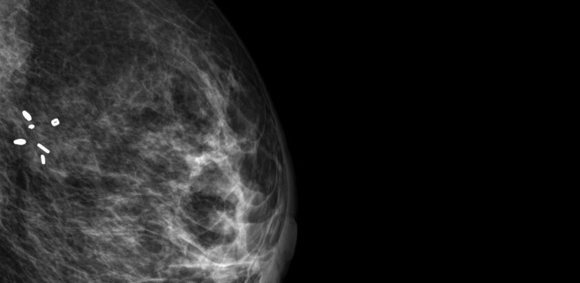 Mammogram with surgical marker